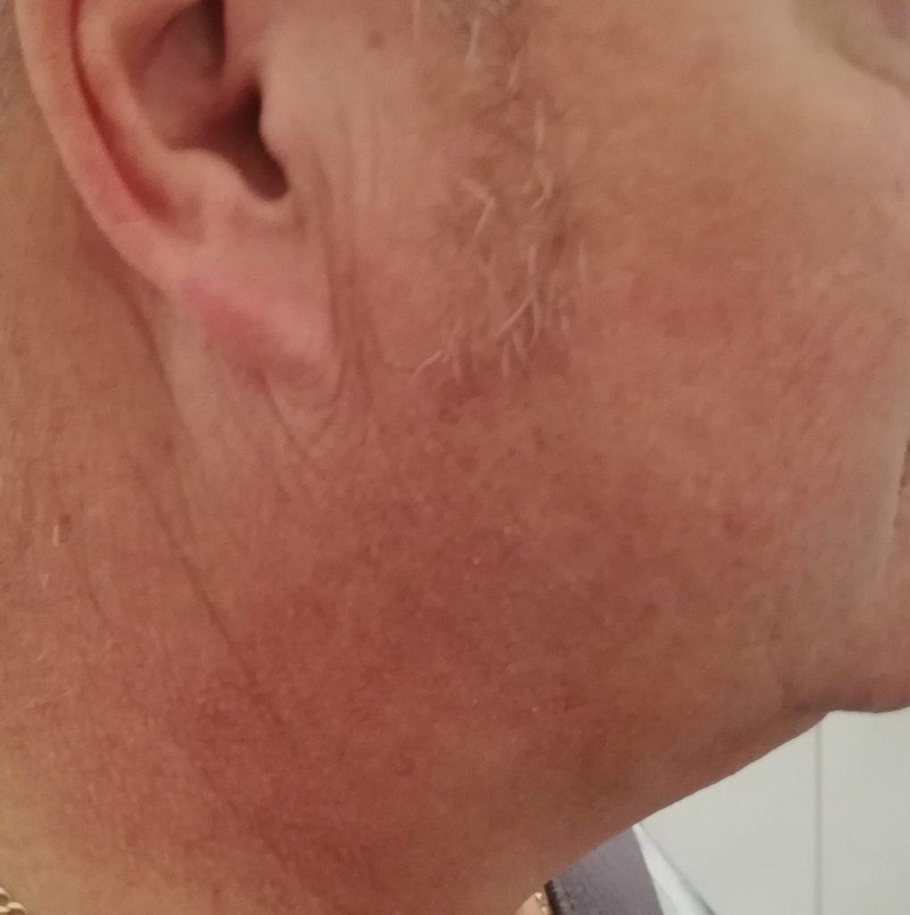 Nach der Rasur mit dem Braun Series 8